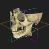 Perfekte Diagnostik: Was ist das Geheimnis des 3D CT?