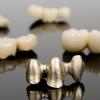 Fémallergia és annak tünetei a szájban