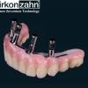 Prettau Zirkon – egy fogtechnikai remekmű