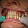 Hogyan akadályozhatom meg a fogíny visszahúzódását?