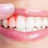 A fogágybetegség (parodontitis) okai, tünetei és kezelési lehetőségei