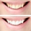 Bleaching - wirksame und anhaltende Zahnaufhellungsmethoden