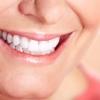 Die effektivsten implantatgetragenen Zahnersatzlösungen