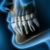 Die einzigartigen Entwicklungen des Straumann Implantatsystems