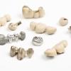 Vor- und Nachteile von Metallkeramikkronen
