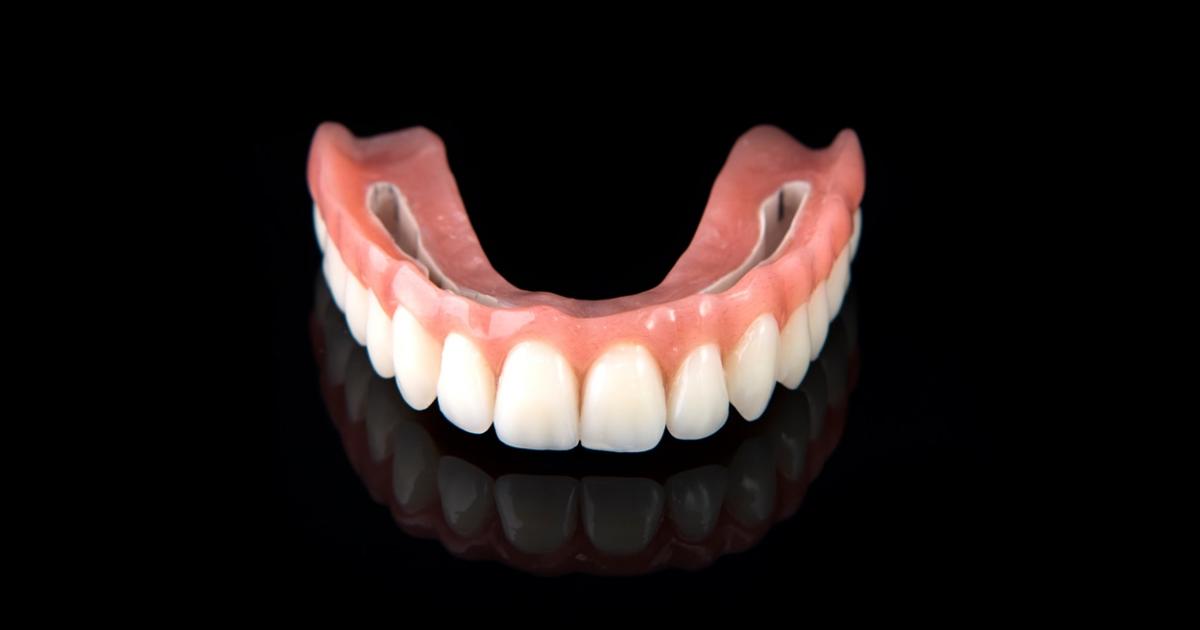 Zahnersatz ohne gaumenplatte herausnehmbarer Klammerprothesen