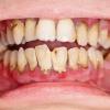 Hyaluronsäure für ein gesundes Zahnfleisch