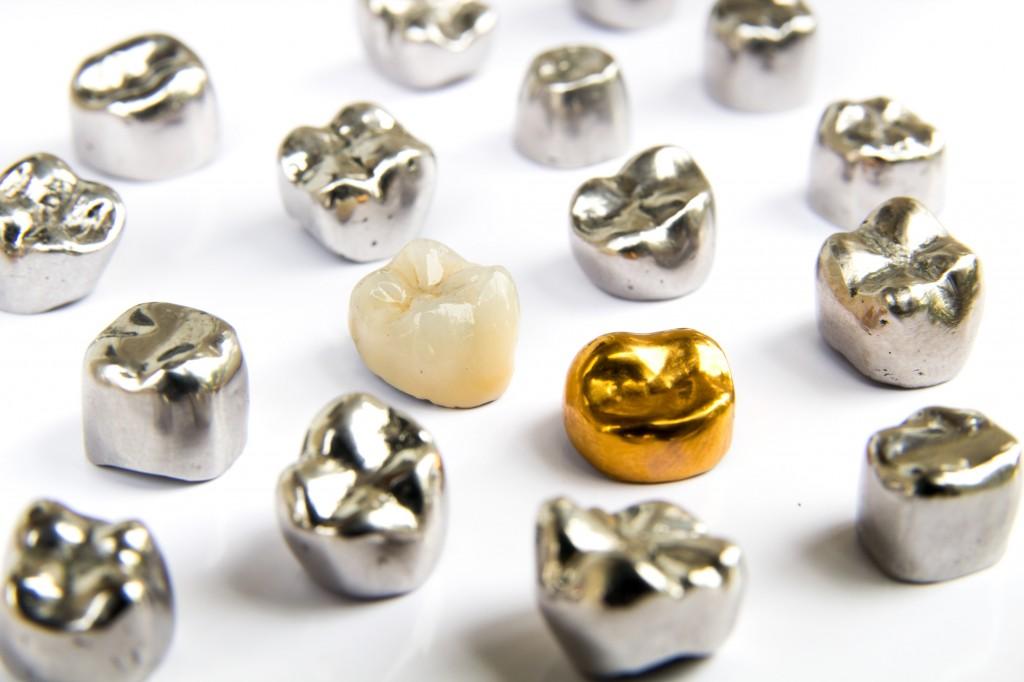 Porzellahnzahn Zahnersatz Aus Hochwertigem Material