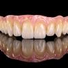 Prettau Zirkon: der ultimative, lebensechte Zahnersatz