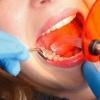 Wann und welche Zahnfüllung?