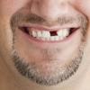 Was soll ich tun, wenn ich Zahnlücken habe? - Zahnersatz-Möglichkeiten im Überblick