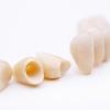 Was sollte man über Zahnkronen wissen?