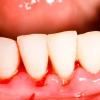 Entzündetes, blutendes Zahnfleisch – Ist das Problem ernst?