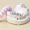 Feste dritte Zähne - Wie kann die abnehmbare Teilprothese befestigt werden?