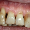 Wie kann man den Zahnfleischrückgang verhindern?