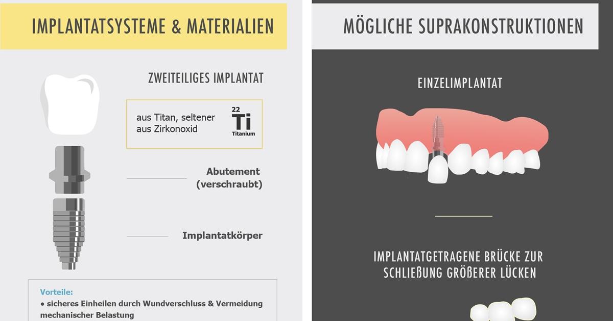 Groß Rahmen See Zahn Fotos - Benutzerdefinierte Bilderrahmen Ideen ...