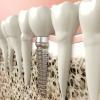 Zahnimplantat Nobel Biocare - Premiumlösung und Qualität aus Schweden