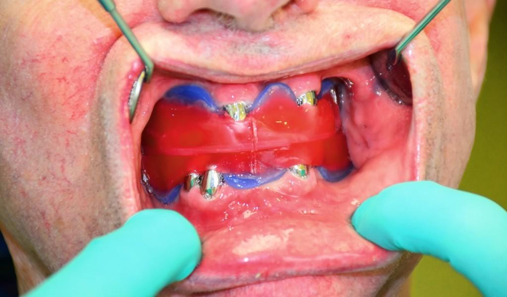 Zahnersatz: Vorher-Nachher-Bilder von Patienten